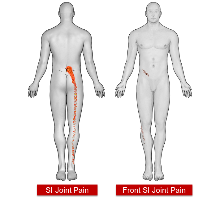 Sacroiliac Joint Si Joint Fusion The Orthopaedic Center